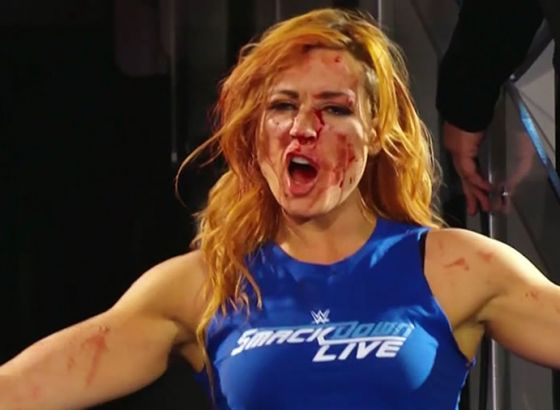 Becky Lynch's Top 5 Moments In WWE